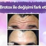 """""""BROTOX """": Erkekler arasında """"Botox"""" trendi"""