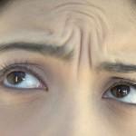"""Yüzünüzdeki """"on bir"""" çizgilerinize """"WOW ETKİLİ"""" tedavi"""